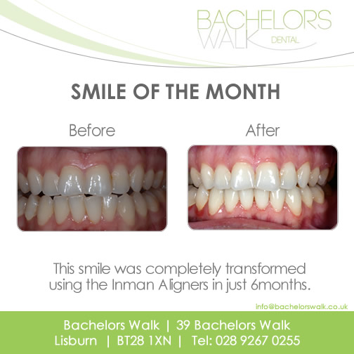 smile of the month Feb